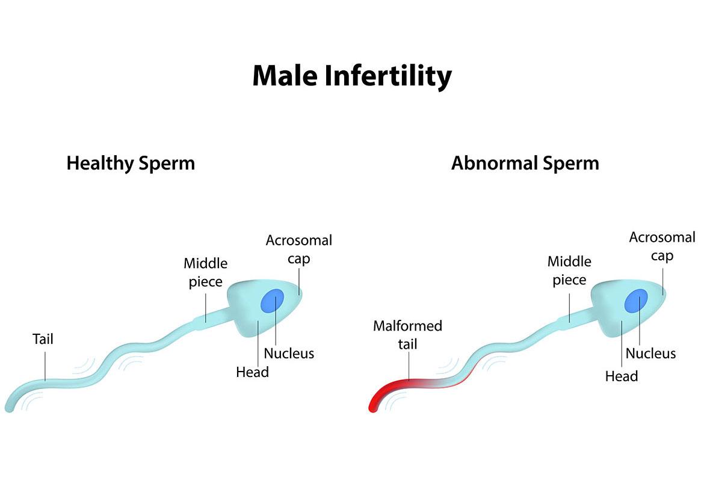 infertilitate masculina erna stoian