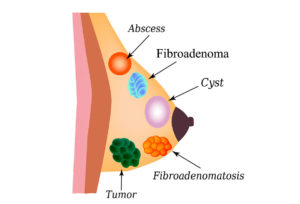 sindromul ovarelor polichistice erna stoian