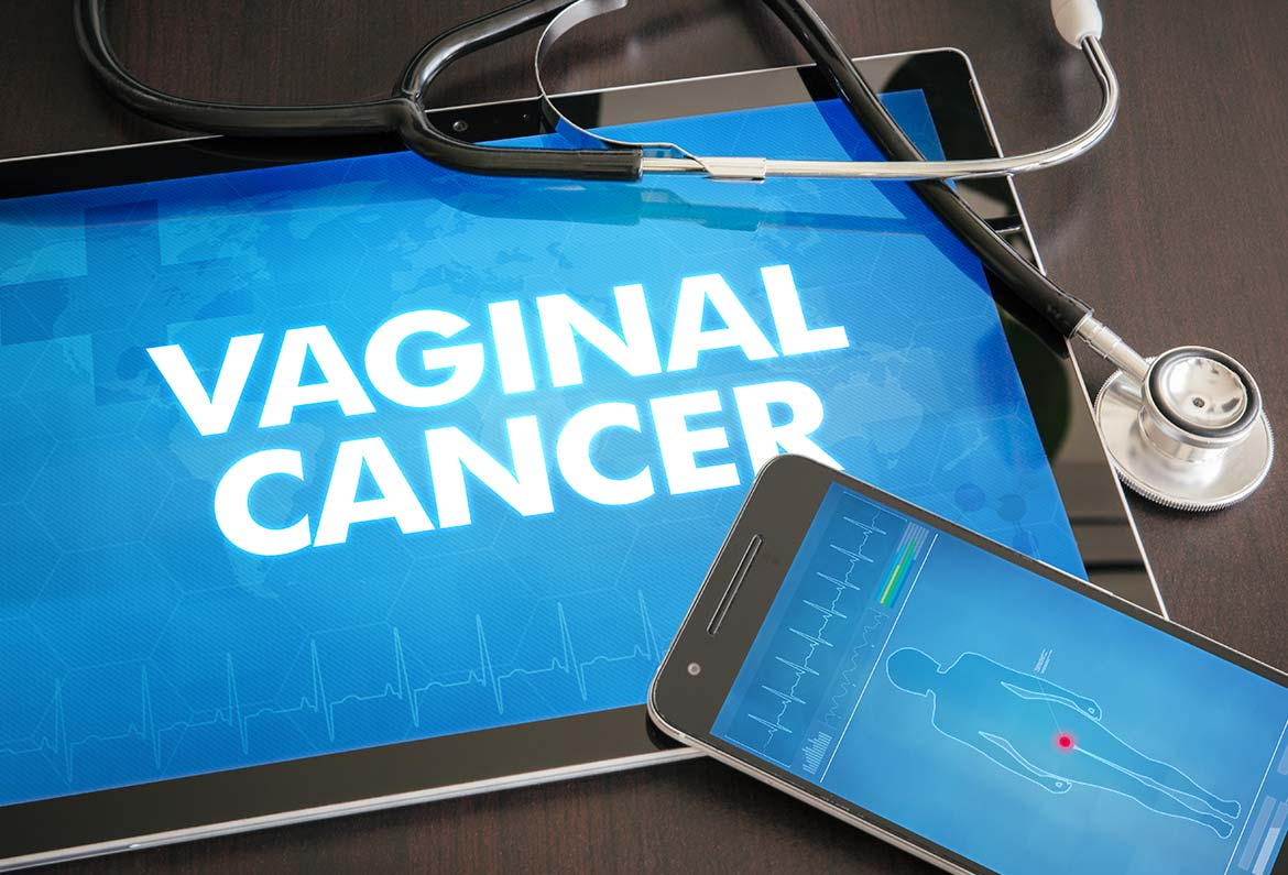cancer vaginal erna stoian
