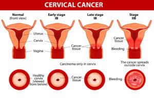 cervical cancer erna stoian