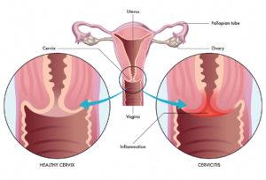 cervicita erna stoian